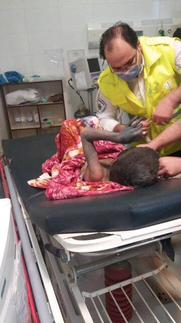 سوختگی شدید 4 نوجوان بر اثر انفجار مواد محترقه در آستارا